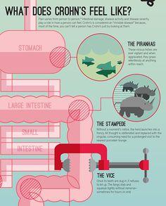 Crohn's Disease - An Infographic. by B. R. Keller, via Behance