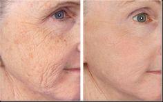Las arrugas son una de las consecuencias del proceso de envejecimiento, ya sea fisiológico o inducido. Con la edad, la división celular se hace más lenta, lo que provoca que la red de elastina, las fibras de colágeno, el grado de humedad que mantienen el tono de la piel, disminuyan en calidad y c