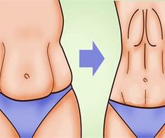A major issue for most women is saggy stomach skin. Whether it's caused by drastic weight loss or by pregnancy, saggy skin on your stomach 7 Workout, Perder 10 Kg, Lose Weight, Weight Loss, Lose Fat, Unwanted Hair, Unwanted Facial, Healthy Beauty, Healthy Fit