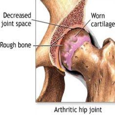 Osteoartritis de cadera!