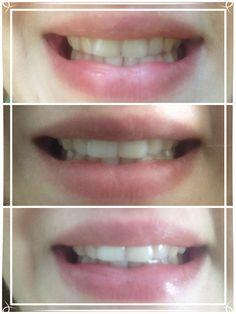 #buzziWhite2Instant Dupa 3 zile consecutive de folosire a kit-ului de albire iWhite2 Instant (benzile de albire,pasta de dinti si apa de gura) rezultatele sunt vizibile! Sunt foarte incantat si cu siguranta voi repeta procedura!