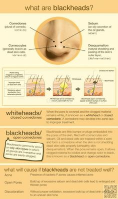 Topical Acne Treatments Via On the Spot: Topical Acne . 12 Holistic Ways to Get Rid of Acne Via 12 Holistic Ways To Get . Adult Acne Via Acne Care, Treatment, and Home . How to Get Rid of Dark Spots from Acne Via — What Are Blackheads, Pimples, Rosacea, Skin Tips, Skin Care Tips, Natural Cough Remedies, Herbal Remedies, Health Remedies, Remove Acne