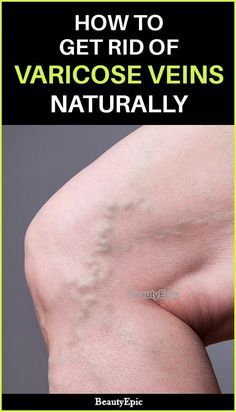 Varicose Veins Remedies How to Get Rid of Varicose Veins Naturall - Natural remedies can take months to show results but they give long term and permanent results. Let us read to know how to get rid of varicose veins Varicose Vein Remedy, Varicose Veins, Natural Home Remedies, Natural Healing, Herbal Remedies, Health Remedies, Cold Remedies, Holistic Healing, Home Beauty Tips