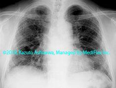 10. 間質性肺炎 症例089:特発性肺線維症/通常型間質性肺炎 胸部単純X線写真,『コンパクトX線アトラスBasic 胸部単純X線写真アトラス vol.1 肺』