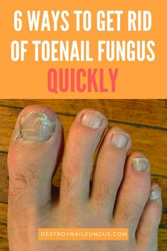 Tired of suffering from nasty, yellow toenail fungus? Read this all telling arti. Tired of suffering from nasty, yellow toenail fungus? Read this all telling arti… Fingernail Fungus, Toenail Fungus Cure, Toenail Fungus Treatment, Fungus Toenails, Toe Fungus Remedies, Foot Remedies, Natural Remedies, Nail Fungus Laser, Health