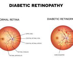 「diabetic retinopathy」的圖片搜尋結果 Diabetic Retinopathy, Diabetes, Chart