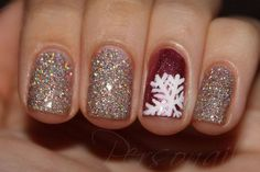 34 Striped Christmas Nail Art Designs - World inside pictures 34 Striped Christmas Nail Art Designs<br> World inside pictures today have an amazing offer for your nails . Make your nails in the spirit of Xmas Nails, Get Nails, Holiday Nails, Christmas Nails, How To Do Nails, Love Nails, Hair And Nails, Winter Christmas, Christmas Glitter