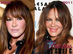 Robin Antin Has Bad Plastic Surgery Face - Botox, Fillers, Lips