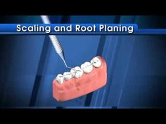 and Root Planing - also known as Deep is needed in the presence of Watch this video to learn more about this procedure: Dental Teeth, Dental Hygienist, Dental Videos, Root Canal Treatment, Dental Procedures, Teeth Cleaning, Tooth Fairy, Oral Health, Instrumental