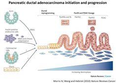 pancreatic cancer