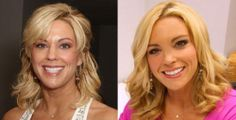 If you are noticing clearly, you will be agreed with me that Kate Gosselin is changed too much. We can tell from her plastic surgery before and after that there are numerous plastic surgery that probably done by Kate Gosselin.