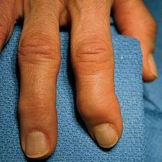 Arthritic Fingers   Using Essential Oils for Arthritis