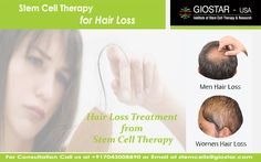 #Stem #Cell #Therapy for #Hair #Loss  Stem cell has the potential to regenerate all kind of cells of body. GIOSTAR scientists have developed the technology to differentiate Stem cells into neural cell, blood cells, skin cell and hair cells.  Know more : http://www.giostar.com/ Email: stemcells@giostar.com