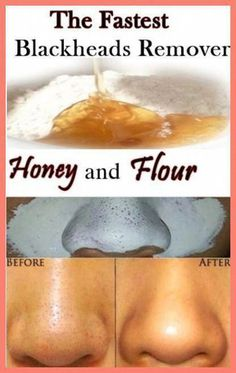 Acne Remedies Learn 8 Homemade Treatments that will make you get Rid of Blackheads Naturally. - Learn 8 Homemade Treatments that will make you get Rid of Blackheads Naturally. Beauty Tips For Glowing Skin, Clear Skin Tips, Beauty Skin, Face Beauty, Clear Skin Routine, Face Skin Care, Diy Skin Care, Face Care Tips, Face Care Routine