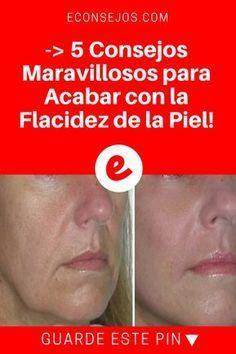 Flacidez de la piel   -> 5 Consejos Maravillosos para Acabar con la Flacidez de la Piel!   Si ningún tratamiento casero para el rostro la ha convencido, estamos seguros que alguno de estas mascarillas naturales, lo hará ¡Dé un vistazo!