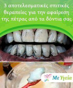 3 αποτελεσματικές σπιτικές θεραπείες για την αφαίρεση της πέτρας από τα δόντια σας Αν δε φροντίσετε για την αφαίρεση της πέτρας μπορεί να προκαλέσετε αρνητικές συνέπειες στα δόντια και τα ούλα σας.