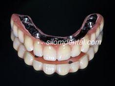 Dental Implant All-on-4,Implants All-on-4,edentulous jaws,dental ...