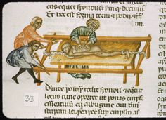 The MacKinney Collection of Medieval Medical Illustrations.  Surgeon attends man on a traction machine as his assistants apply traction.  Traction is still used today.