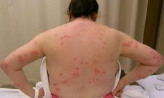Bed bugs rash is caused by bed bug bites. What the hell? That's NASTY!