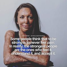 Turia Pitt is an Australian mining engineer motivationalist and author. Pitt was competing in an ultramarathon through Western Australia's Kimberley region in 2011 when she was caught in a bushfire. She suffered burns to 65% of her body and had four fingers from her left hand and her right thumb amputated. | This pin brought to you by, Lisa Miguel, Realtor with West USA Realty. www.lisamiguel.com