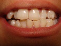 Dental Malocclusion dentistidentity.com