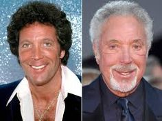 Image result for celebrity plastic surgery 2017