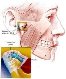 TMJ : Temporo-Mandibular Joint