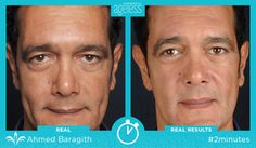 Show us what YOU can do in just #2minutes with Instantly Ageless!