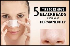How To Get Rid Of Blackheads On Nose: Remedies For Blackheads - mitesser What Are Blackheads, Remove Blackheads From Nose, Get Rid Of Blackheads, Remove Acne, Pimples, Blackhead Remedies, Blackhead Remover, Nose Strips, Best Face Mask