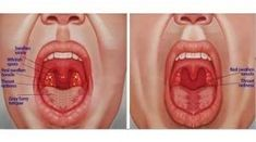 Viral Pharyngitis is an inflammation that affects the pharynx of the throat. It is also referred to as sore throat. A sore throat induced by pharyngitis Health Remedies, Home Remedies, Natural Remedies, Rosacea Remedies, Chronic Sore Throat, Strep Throat Symptoms, Reflux Symptoms, Metabolism, Workout Exercises