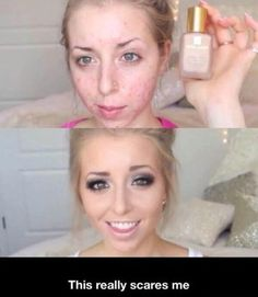Scary!! Maybe less makeup and your face won't look like that....