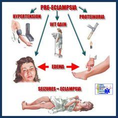 Pre-Eclampsia Newborn Nursing, Child Nursing, Nursing Students, Ob Nursing, Nursing School Tips, Nursing Notes, Nursing Schools, Pre Eclampsia Signs, Pediatric Nurse Practitioner