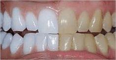 Son muchos los tratamientos de estética que nos ayudan a mejorar en muchos aspectos saludables. La sonrisa, es una de las cosas más importantes del ser humano, cuando hablamos del aspecto físico. Pero no solamente vale la pena cuidarla por el aspecto físico sino también por la parte saludable. Tener unos dientes fuertes pero también
