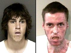 before & after --meth!