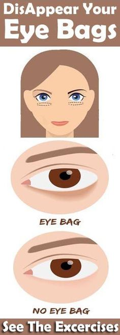 8 Simple Exercises That Disappears Your Eye Bags Quickly - Page 2 of 3 - Style Vast Under Eye Bags, Facial Exercises, Lose 15 Pounds, Loose Skin, Double Chin, Belly Fat Workout, Lose Weight Naturally, Natural Essential Oils, Drink Recipes