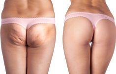 Natürliche Behandlungsmethoden gegen Cellulite