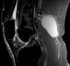 Tarlov / Meningeal Cyst Post-Operative Instructions