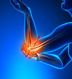 Get rid of elbow pain: When pain in the elbow joint, the area where the humerus meets the radius and ulna, causing difficulty in movement and normal actions Tennis Arm, Tennis Elbow, Radius And Ulna, Heart Circulation, Tendinitis, Elbow Pain, Eft Tapping, Bone And Joint, Anti Inflammatory Diet