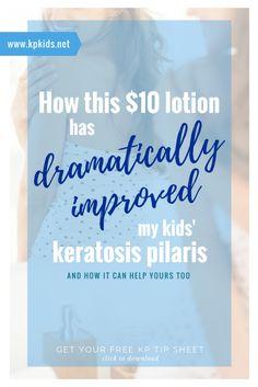 How this $10 Lotion Dramatically Improved my Kids' Keratosis Pilaris | KPKids.net
