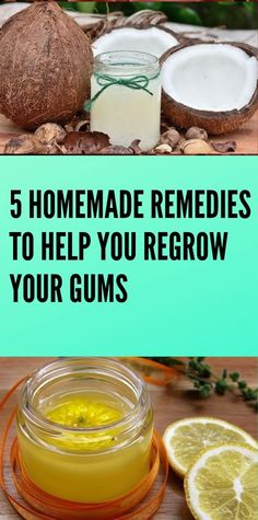 5 Homemade Remedies to Help You Regrow Your Gums - Page 4 of 4 - Your Health Health And Fitness Expo, Health And Fitness Articles, Wellness Fitness, Health Advice, Fitness Tips, Life Advice, Relationship Advice, Yoga Fitness, Natural Health Tips