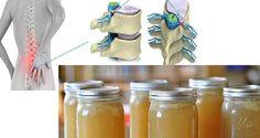 Recette miracle pour guérir la douleur dans le dos, les jambes et les chevilles-