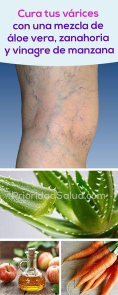 Elimina las varices en piernas con este tratamiento a base de aloe vera, zanahoria y vinagre de manzana. #aloe #vera #aloevera #tratamiento #varices #aloevera #treatment #naturalremedies