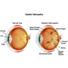 Symptoms Of Diabetic Blindness