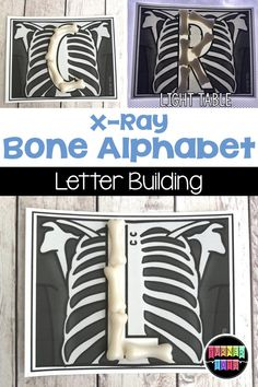 X-Ray Bone Alphabet | Build the letters of the alphabet with bones on these x-rays. Great for a doctor or community helper preschool theme.