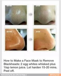 Face Mask To Remove Blackheads!🙏Finally!Please 👍 If You 💾!!💕💕💕