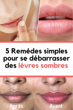 5 Remèdes Simples pour se Débarrasser des Lèvres Sombres #éclaircir#peau#lèvres #blanchir #sombre Point, Cream, Simple, Natural Lips, Natural Beauty Tips, Dark Lips, Perfect Lips, Health And Beauty, Natural Remedies