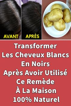 Transform White Hair To Black After Using This Home Remedy – Natural … - Modern White Hair, Black Hair, Health Dinner, Hair Remedies, Natural Hair Styles, Beauty Hacks, Health Fitness, Hair Beauty, Weight Loss