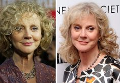 Being woman in 70 seems bit too hard for American actress Blythe Danner. That why she then conducted the plastic surgery especially botox to make her looking better and preserve young forever. Plastic Surgery Before After, Blythe Danner, Botox Alternative, Celebrity Plastic Surgery, Botox Injections, Hollywood Celebrities, American Actress, Your Skin, Dreadlocks
