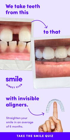 SmileDirectClub invisible aligners straighten your teeth completely from home and for less than half the price of other competing systems. Teeth Care, Skin Care, Teeth Straightening, Gewichtsverlust Motivation, Quiz, Oral Hygiene, Teeth Whitening, Straightener, Health And Beauty