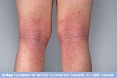 Treatments and self-care steps can help ease discomfort caused by eczema.